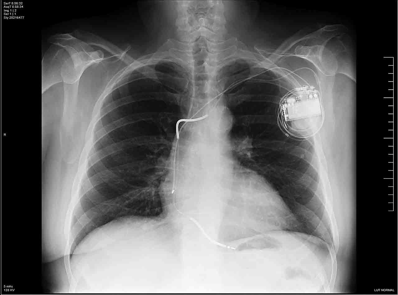 """Figura 1. Radiografía de tórax previa al procedimiento de """"upgrade""""."""