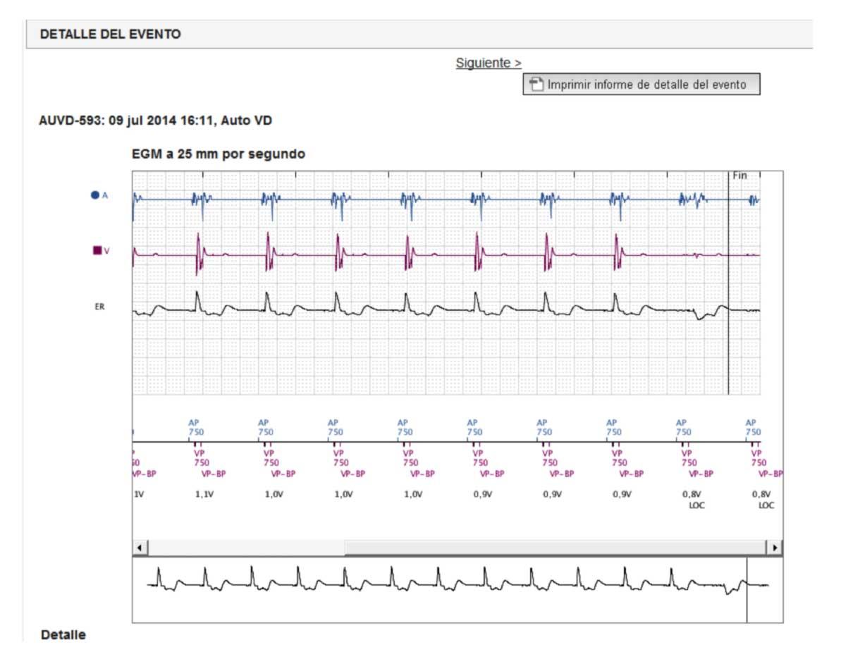 Figura 3: Test automático de umbral de estimulación en ventrículo derecho.