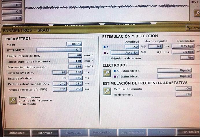 Reprogramamos umbral en AD en 2 V durante 0,4 mseg y en VD activamos la captura automática latido a latido: Modo AUTO.