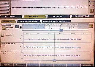 SE MANTIENE EL UMBRAL ESTABLE A 0,9 V y se encuentra estimulando a 1,4V.