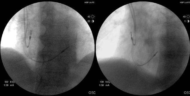 Imágenes fluoroscópicas en las proyecciones oblicua anterior derecha e izquierda de un electrodo ventricular de estimulación posicionado en una zona medio-septal. Tomado de Cano et al. Am J Cardiol 2010, con permiso.