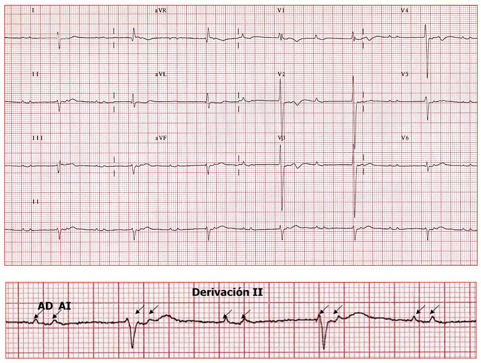 Bloqueo interatrial asociado a bloqueo auriculoventricular de segundo grado con conducción 2:1. En panel inferior, derivación II ampliada con los dos elementos auriculares distanciados (marcados con flechas) por retraso de la conducción a nivel del haz de Bachmann.