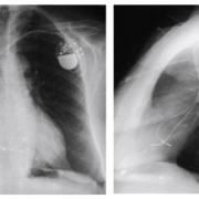 Radiografía pa y lateral de tórax que muestra generador doble cámara con el cable auricular situado en la región septal baja, próximo al ostium del seno coronario.