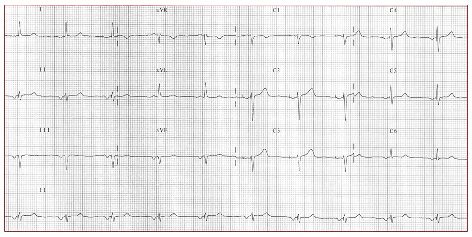 ECG de doce derivaciones de un paciente con estimulación auricular en región septal baja que muestra una onda P estimulada negativa en derivaciones II,III y aVF, positiva en aVR y negativa en precordiales izquierdas.