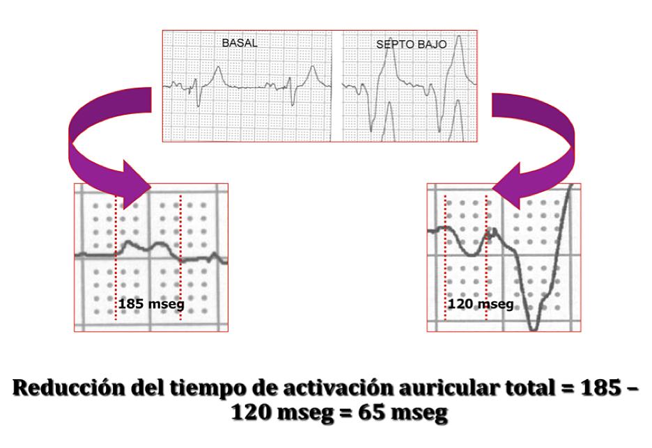 Reducción del tiempo de activación auricular total por estimulación en septo interauricular bajo. Duración de la onda P intrínseca 185 ms. Duración de la onda P estimulada 120 ms. Reducción 65 ms.