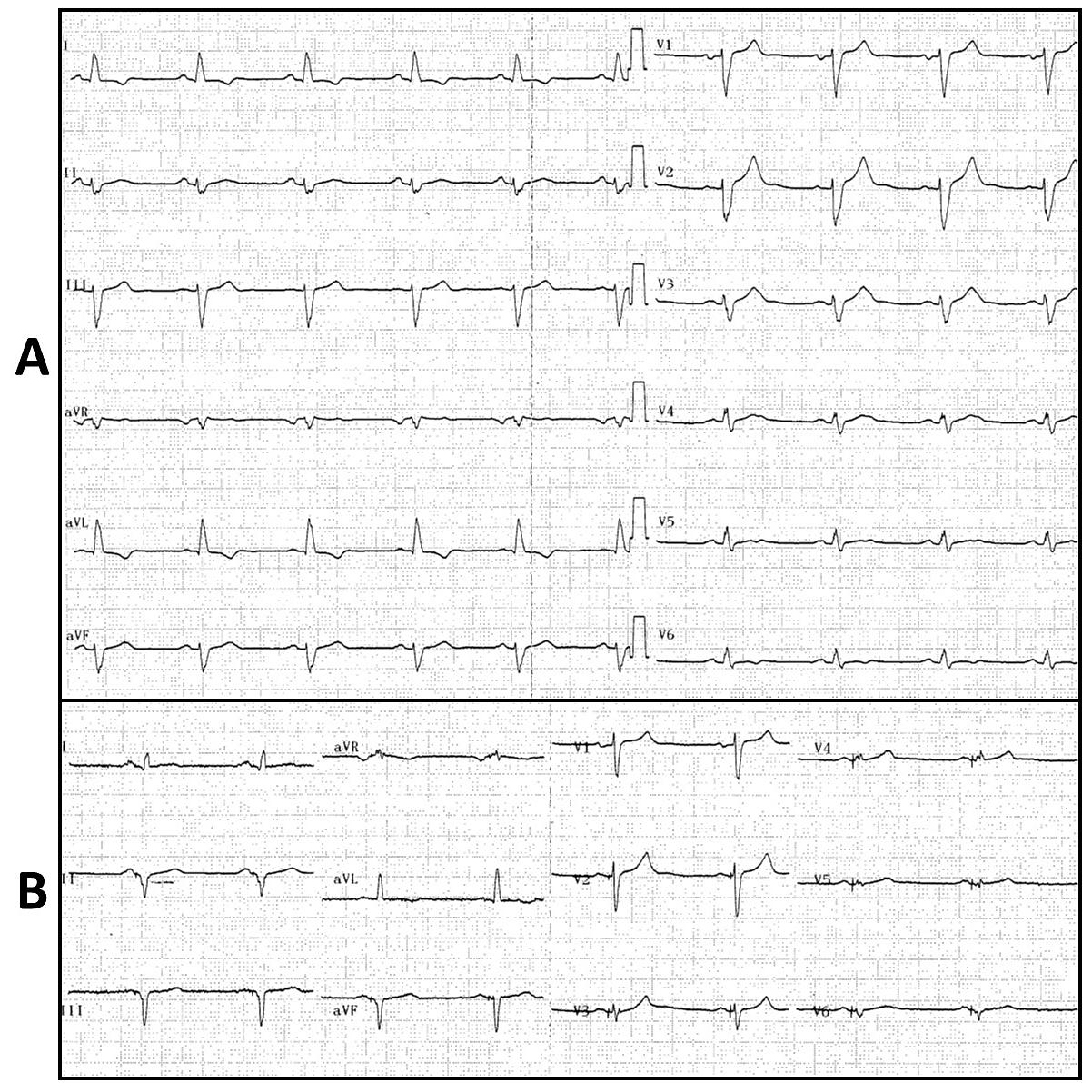 """FIGURA 1: (A) Electrocardiograma basal en ritmo sinusal, con intervalo PR de 185 ms y complejo QRS con morfología de BRI y una duración de 150 ms. (B) Electrocardiograma tras el implante, con estimulación exclusiva desde VI. Se observa un complejo QRS con datos de estimulación izquierda (onda """"r"""" inicial en la derivación V1 y onda """"s"""" inicial en I y V6) y una duración de 110 ms."""
