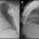 FIGURA 2: Radiografías de tórax post-implante. Proyecciones PA (izquierda) y lateral (derecha), mostrando la posición septoapical del electrodo de VD y lateral media del electrodo de VI.