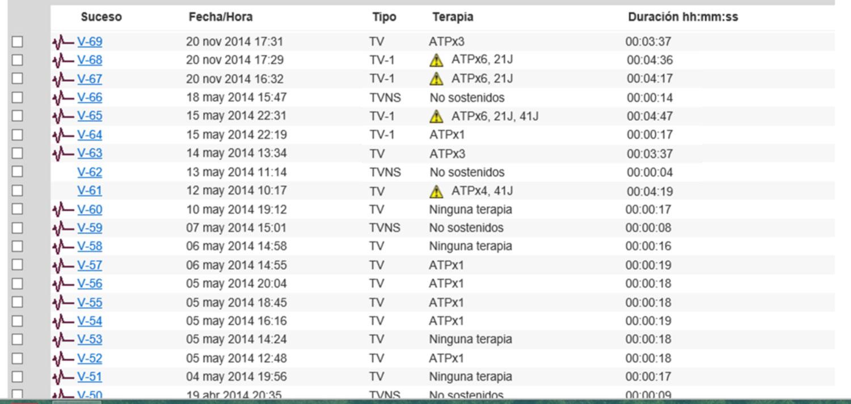imagen de los sucesos arrítmicos registrados por el sistema de monitorización remota.