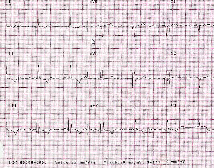 FIGURA 2: ECG postimplante en His. La ausencia de latencia en todas las derivaciones, la presencia de pequeña onda delta, mas evidente en I y aVL, y las alteraciones de repolarización, indican captura fusionada His y miocardio.
