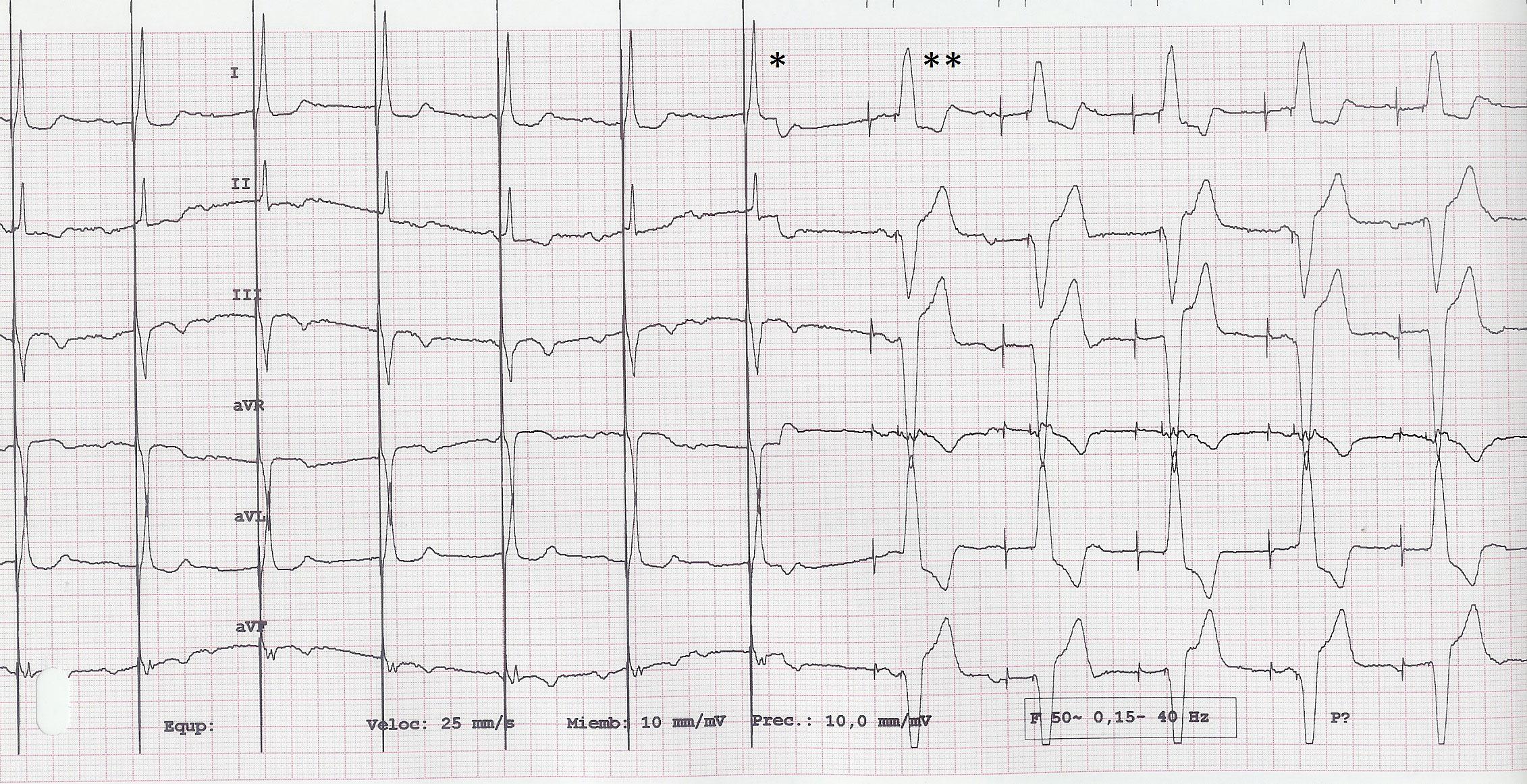 FIGURA 3: ECG correspondiente a la última revisión. Marcapasos DDDR con AV de 200ms. Hasta * la estimulación en His, provoca complejo de fusión, que inhibe la estimulación ventricular. A partir de **, se pierde la captura hisiana, apareciendo 200 ms después la estimulación en ápex de VD. Se objetivan ondas P. (ver texto)