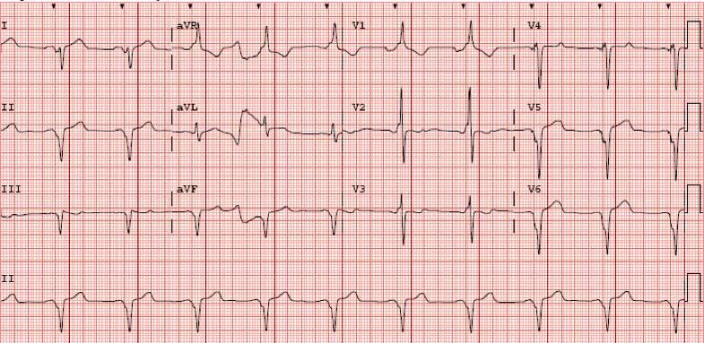 Figura 5. ECG de 12 derivaciones tras la optimización. Se observa un estrechamiento evidente del QRS, así como onda R en V1 y complejos ventriculares predominantemente negativos en I y V6, datos todos ellos que confirman la captura biventricular.