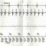 Figura 1. Electrogramas intracavitarios mostrando el inicio de uno de los episodios de taquicardia ventricular sostenida.