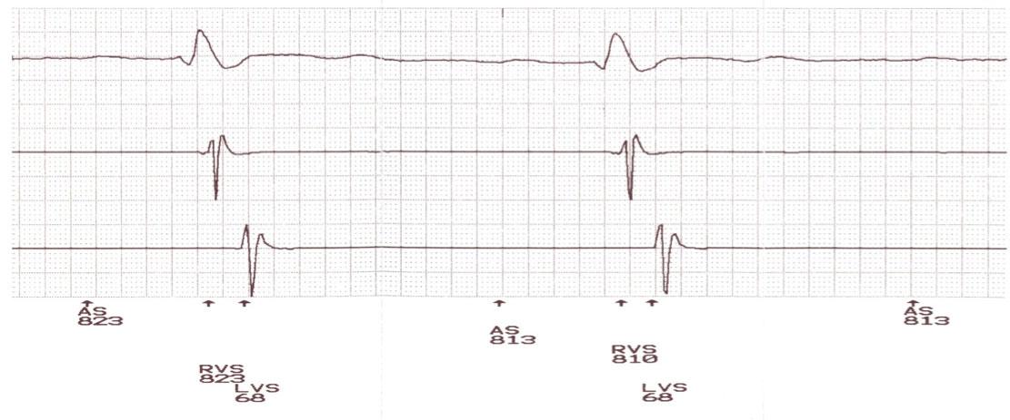 Figura 2: Registro del programador obtenido a 100 mm/sg, mostrando de arriba a abajo: derivación II del ECG, electrograma intracavitario del VD y del VI durante el ritmo espontáneo. Se puede observar que el registro de VD tiene cierto retraso, como corresponde con el BRD. El registro de VI muestra un retraso muy marcado, con la deflexión rápida coincidiendo con el final del QRS.