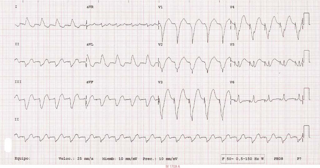 Figura 1. ECG con estimulación bicameral convencional