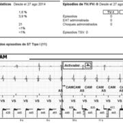 """Figura 2: """"Report"""" de eventos automáticamente diagnosticados por el desfibrilador. Nótese ausencia de episodios de detección de arritmias ventriculares."""