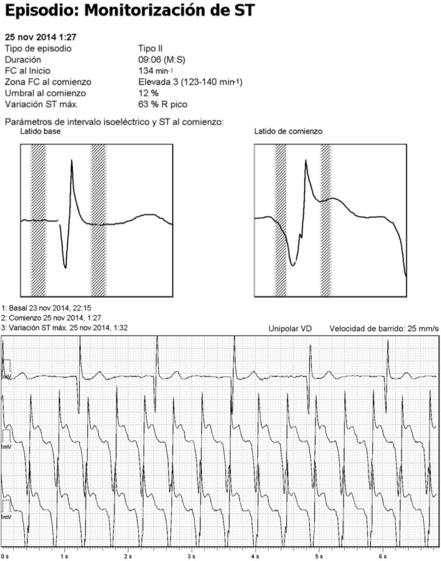 Figura 3: Episodio de detección de alteración del segmento ST. Nótese ausencia de alteraciones del segmento ST en ECG previo al evento arrítmico.