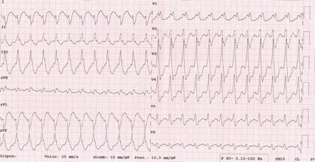 Figura 4: ECG de superficie de 12 derivaciones del episodio de taquicardia ventricular.