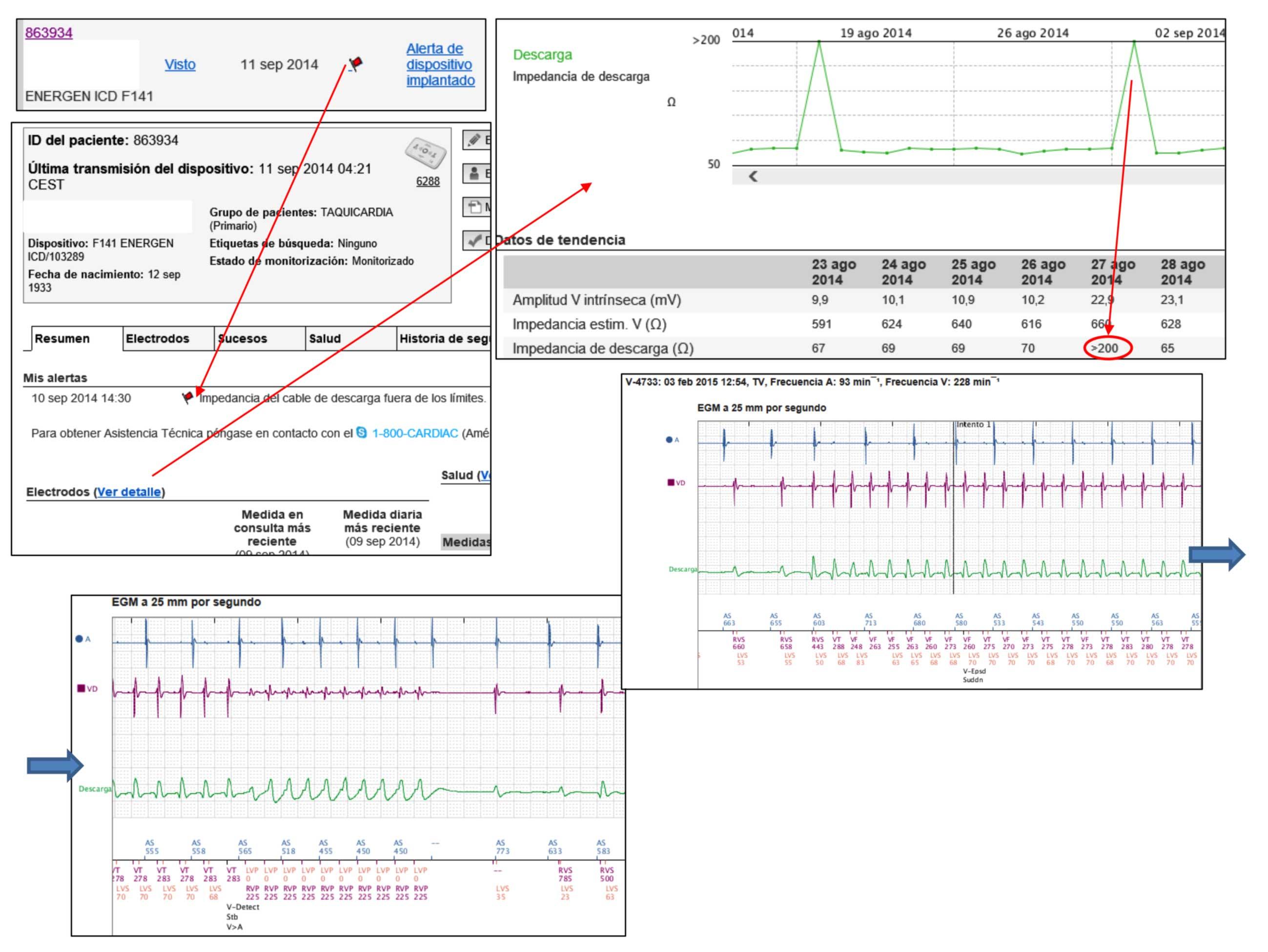 Figura 4: Es posible visualizar las características del episodio y los electrogramas almacenados