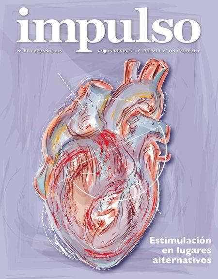 Estimulación cardiaca en lugares alternativos
